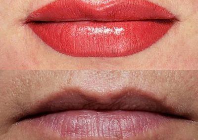 lip-contour-victoria-1