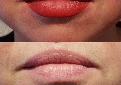 lip-contour-victoria-11