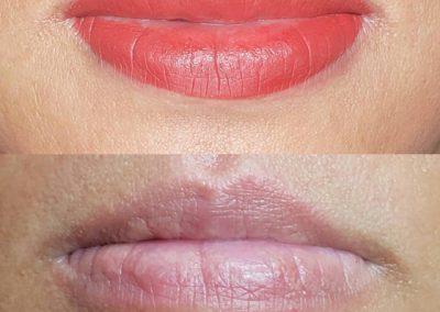 lip-contour-victoria-12