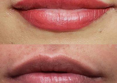 lip-contour-victoria-2