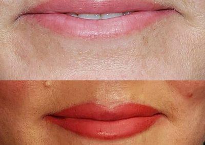 lip-contour-victoria-4