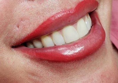 lip-contour-victoria-9