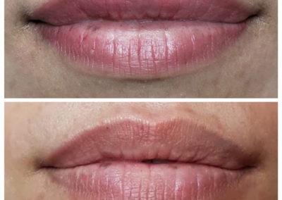 Permanent-Makeup-Lips-Victoria-BC-03