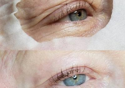 Wrinkle-Sagging-Skin-Removal-Victoria-04