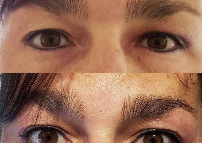 Wrinkle-Sagging-Skin-Removal-Victoria-08