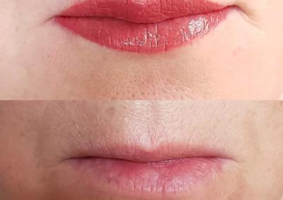 Lips_One