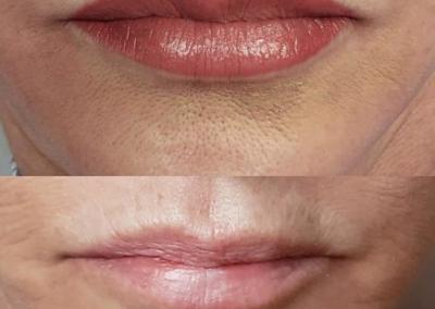 Lips_Six